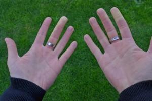 Raynaud-Syndrom-Weißfinger-Hände-frieren