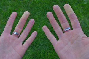Raynaud-Syndrom, Weißfinger-Krankheit, frieren